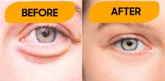 Tips to get rid under eye bags